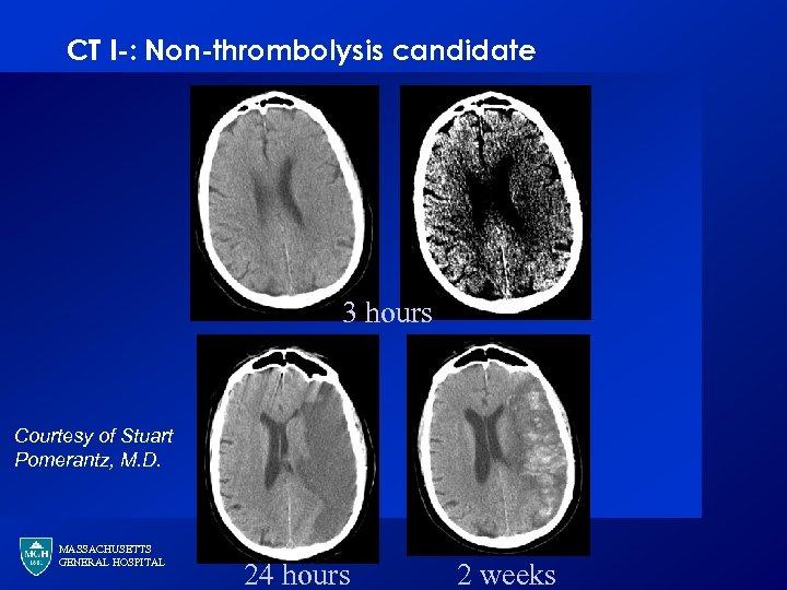 CT I-: Non-thrombolysis candidate 3 hours Courtesy of Stuart Pomerantz, M. D. MASSACHUSETTS GENERAL