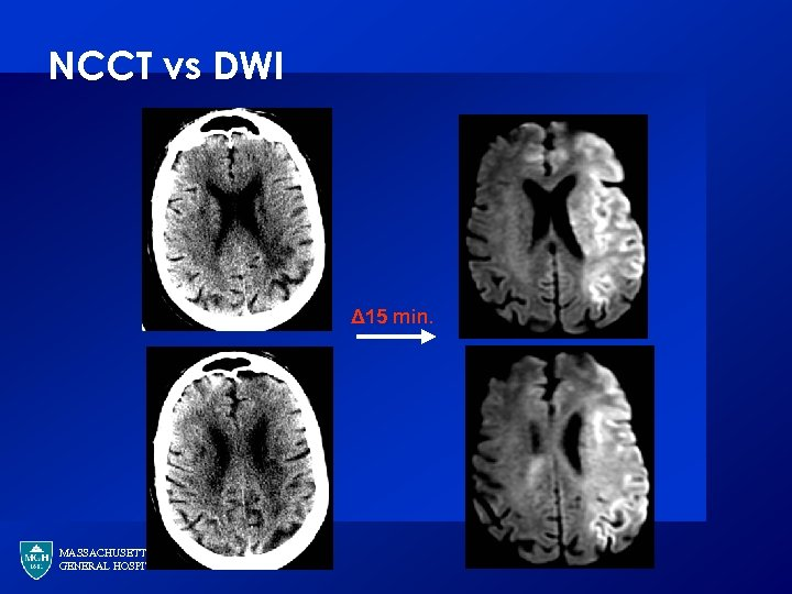 NCCT vs DWI Δ 15 min. MASSACHUSETTS GENERAL HOSPITAL
