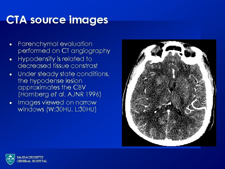 CTA source images · · Parenchymal evaluation performed on CT angiography Hypodensity is related