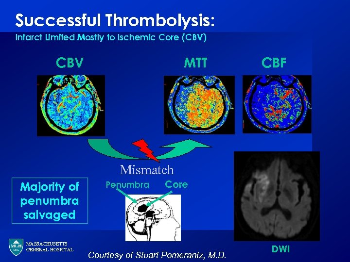 Successful Thrombolysis: Infarct Limited Mostly to Ischemic Core (CBV) CBV MTT CBF Mismatch Majority