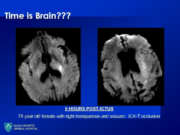 Time is Brain? ? ? 8 HOURS POST-ICTUS 79 year old female with right