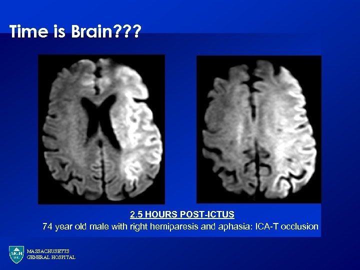 Time is Brain? ? ? 2. 5 HOURS POST-ICTUS 74 year old male with
