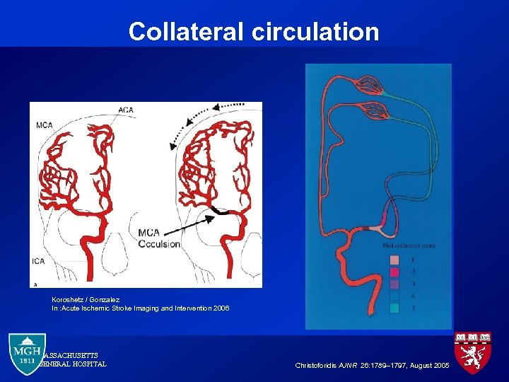 Collateral circulation Koroshetz / Gonzalez In : Acute Ischemic Stroke Imaging and Intervention 2006