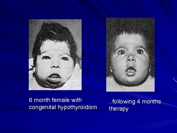 6 month female with congenital hypothyroidism . . following 4 months therapy