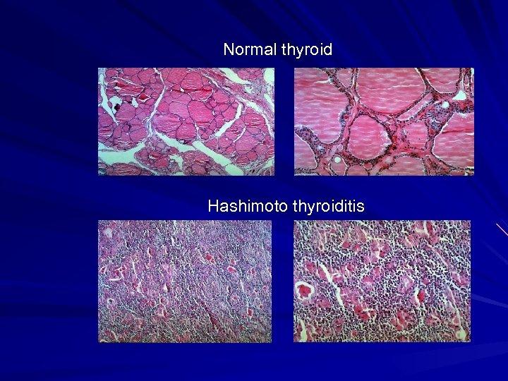 Normal thyroid Hashimoto thyroiditis