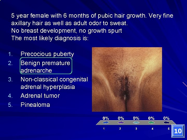 5 year female with 6 months of pubic hair growth. Very fine axillary hair