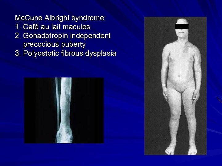 Mc. Cune Albright syndrome: 1. Café au lait macules 2. Gonadotropin independent precocious puberty