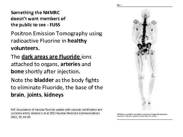 Something the NHMRC doesn't want members of the public to see - FUSS Positron
