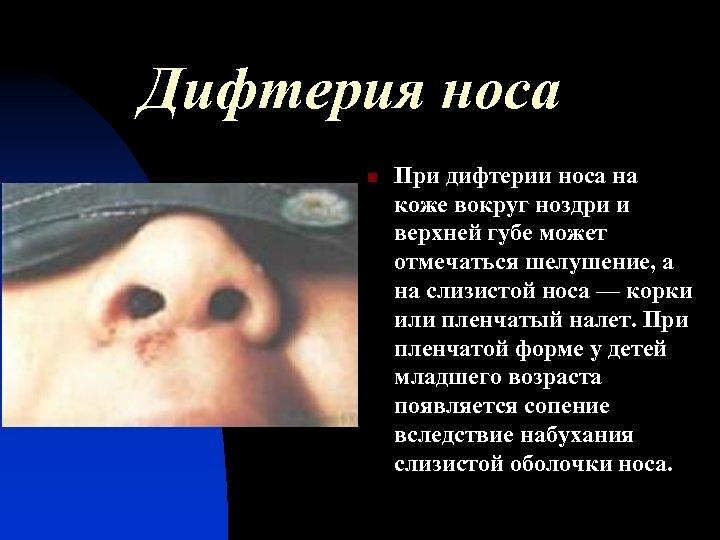 Дифтерия носа n При дифтерии носа на коже вокруг ноздри и верхней губе может