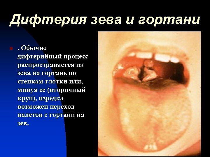 Дифтерия зева и гортани n . Обычно дифтерийный процесс распространяется из зева на гортань