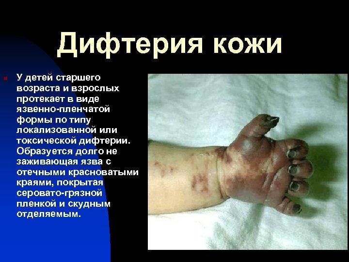Дифтерия кожи n У детей старшего возраста и взрослых протекает в виде язвенно-пленчатой формы