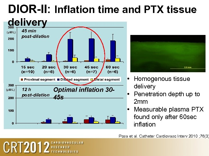 DIOR-II: Inflation time and PTX tissue delivery (µM/L) 45 min post-dilation 12 h post-dilation