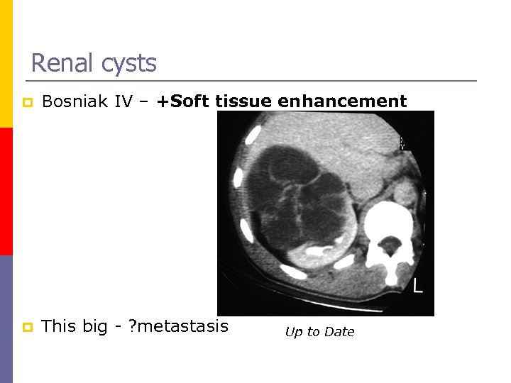 Renal cysts p Bosniak IV – +Soft tissue enhancement p This big - ?