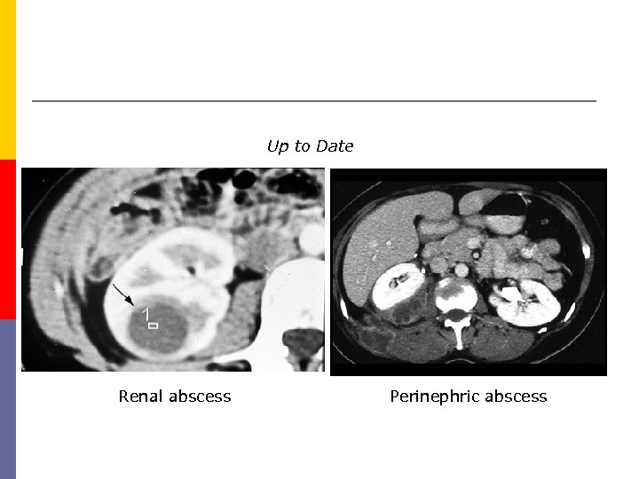 Up to Date Renal abscess Perinephric abscess