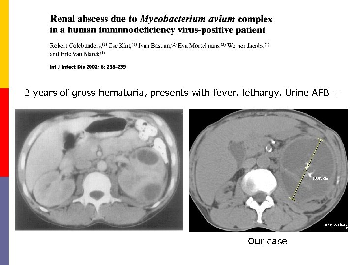 2 years of gross hematuria, presents with fever, lethargy. Urine AFB + Our case