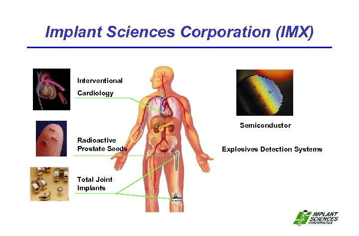 Implant Sciences Corporation (IMX) Interventional Cardiology Semiconductor Radioactive Prostate Seeds Total Joint Implants Explosives