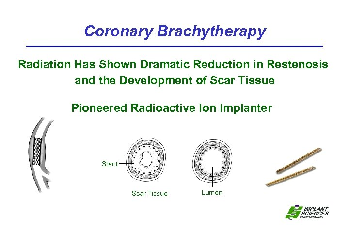 Coronary Brachytherapy Radiation Has Shown Dramatic Reduction in Restenosis and the Development of Scar
