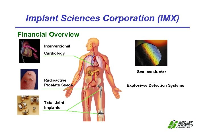 Implant Sciences Corporation (IMX) Financial Overview Interventional Cardiology Semiconductor Radioactive Prostate Seeds Total Joint