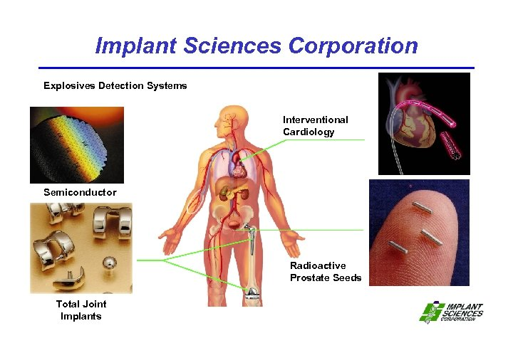 Implant Sciences Corporation Explosives Detection Systems Interventional Cardiology Semiconductor Radioactive Prostate Seeds Total Joint
