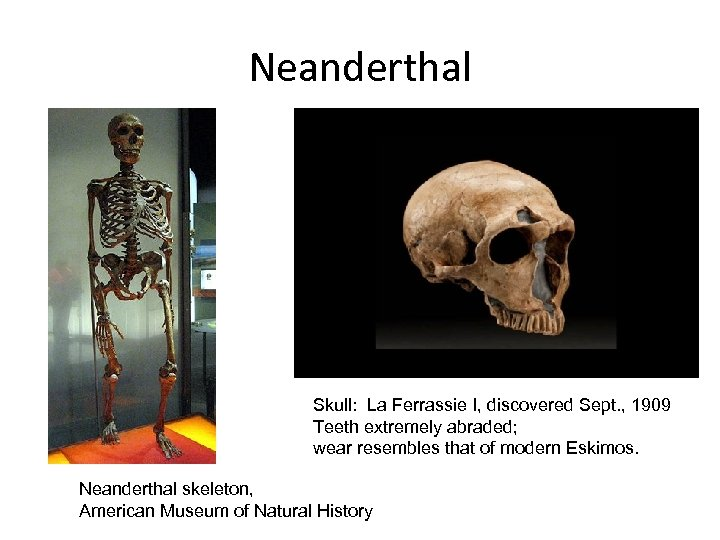 Neanderthal Skull: La Ferrassie I, discovered Sept. , 1909 Teeth extremely abraded; wear resembles