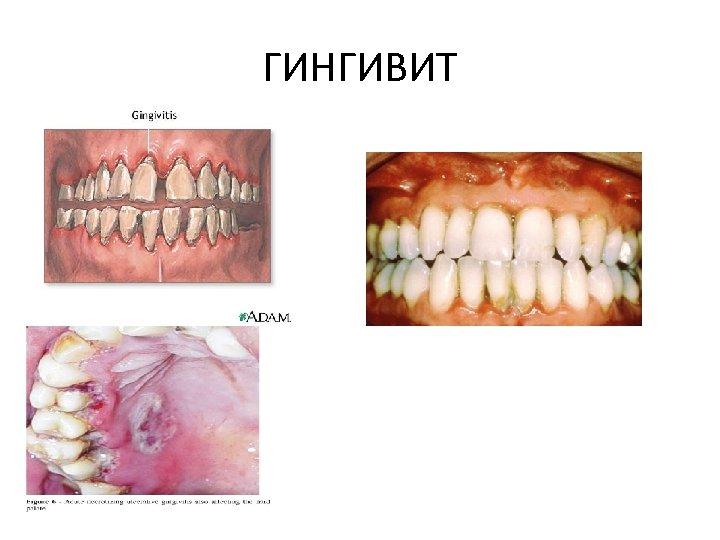 ГИНГИВИТ