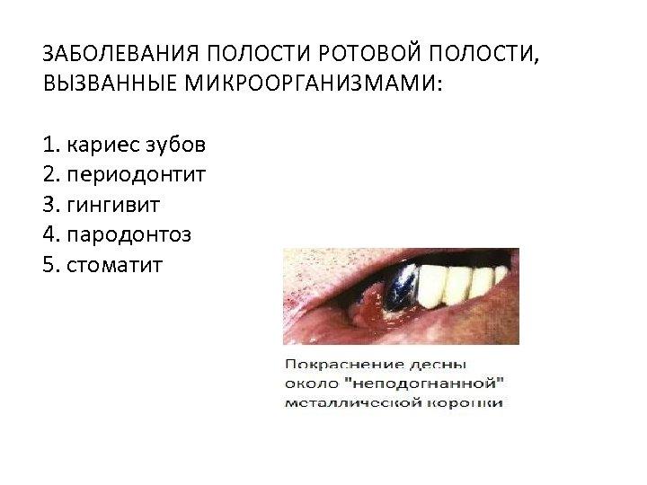 ЗАБОЛЕВАНИЯ ПОЛОСТИ РОТОВОЙ ПОЛОСТИ, ВЫЗВАННЫЕ МИКРООРГАНИЗМАМИ: 1. кариес зубов 2. периодонтит 3. гингивит 4.