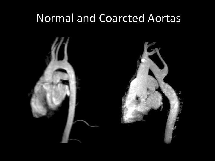 Normal and Coarcted Aortas
