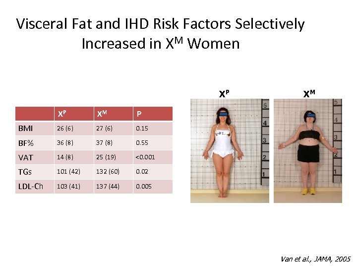 Visceral Fat and IHD Risk Factors Selectively Increased in XM Women XP XP XM