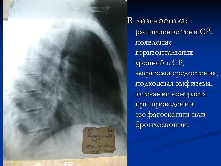 R диагностика: расширение тени СР. появление горизонтальных уровней в СР, эмфизема средостения, подкожная эмфизема,