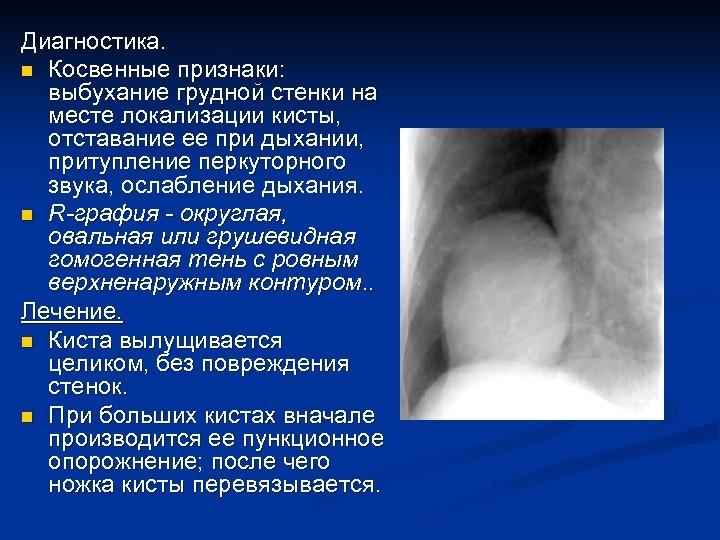 Диагностика. n Косвенные признаки: выбухание грудной стенки на месте локализации кисты, отставание ее при