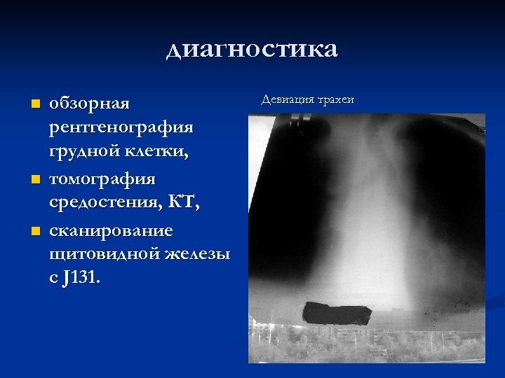 диагностика n n n обзорная рентгенография грудной клетки, томография средостения, КТ, сканирование щитовидной железы
