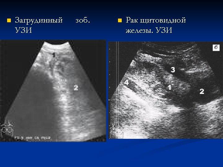 n Загрудинный УЗИ зоб. n Рак щитовидной железы. УЗИ