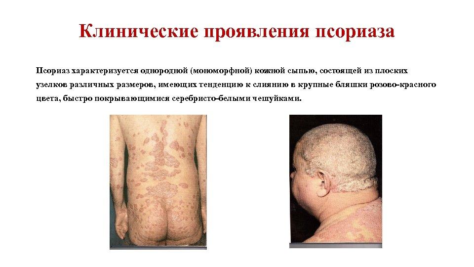 Клинические проявления псориаза Псориаз характеризуется однородной (мономорфной) кожной сыпью, состоящей из плоских узелков различных