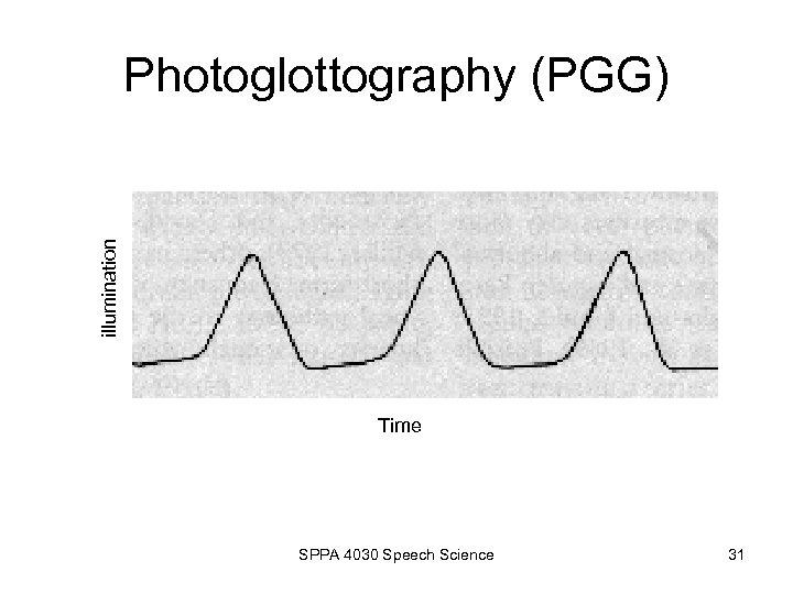 illumination Photoglottography (PGG) Time SPPA 4030 Speech Science 31