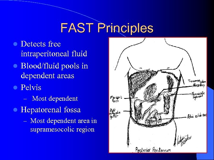 FAST Principles Detects free intraperitoneal fluid l Blood/fluid pools in dependent areas l Pelvis