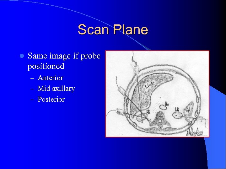 Scan Plane l Same image if probe positioned – Anterior – Mid axillary –