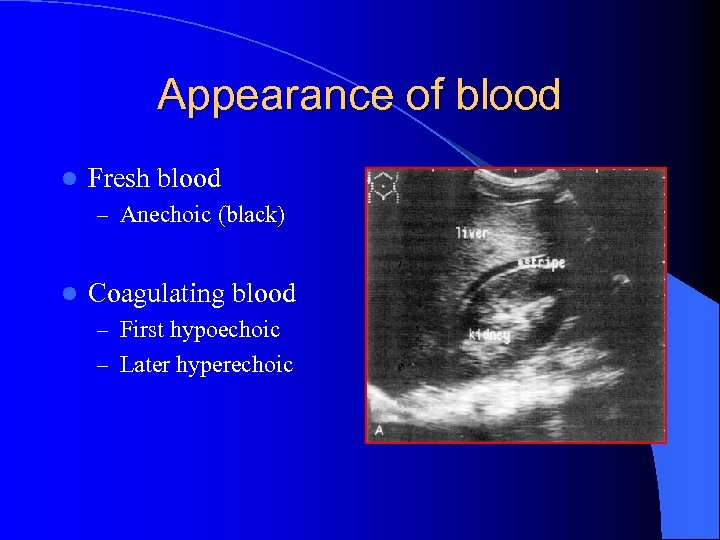Appearance of blood l Fresh blood – Anechoic (black) l Coagulating blood – First