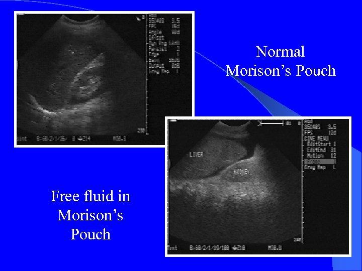 Normal Morison's Pouch Free fluid in Morison's Pouch