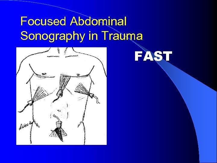 Focused Abdominal Sonography in Trauma FAST