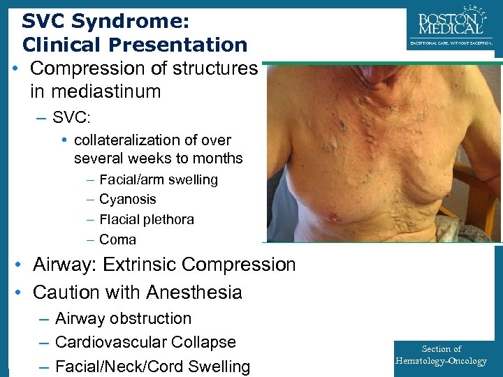 SVC Syndrome: Clinical Presentation • Compression of structures in mediastinum 34 – SVC: •