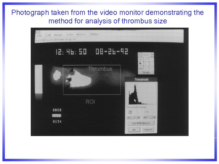 Photograph taken from the video monitor demonstrating the method for analysis of thrombus size