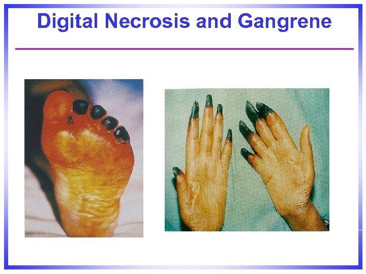Digital Necrosis and Gangrene