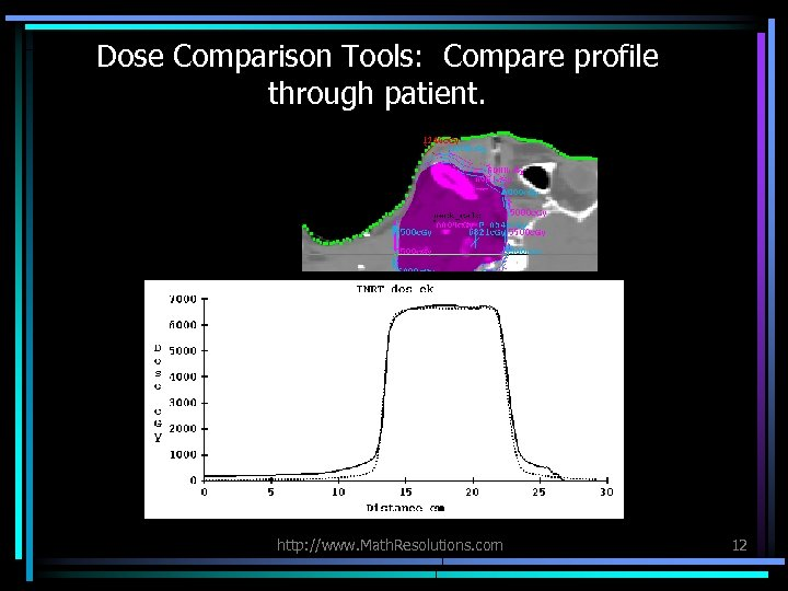 Dose Comparison Tools: Compare profile through patient. http: //www. Math. Resolutions. com 12