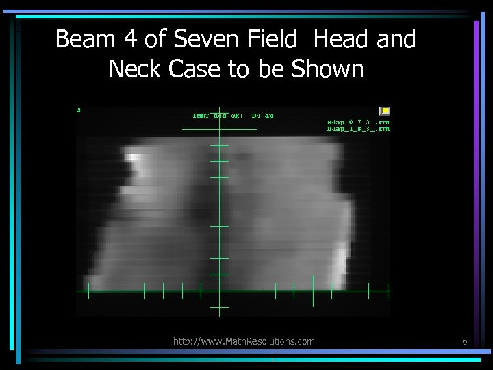 Beam 4 of Seven Field Head and Neck Case to be Shown http: //www.