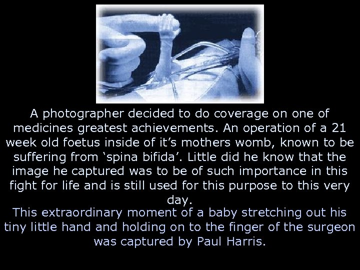 A photographer decided to do coverage on one of medicines greatest achievements. An operation