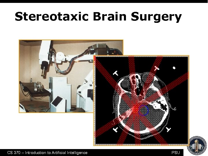 Stereotaxic Brain Surgery CS 370 – Introduction to Artificial Intelligence PSU