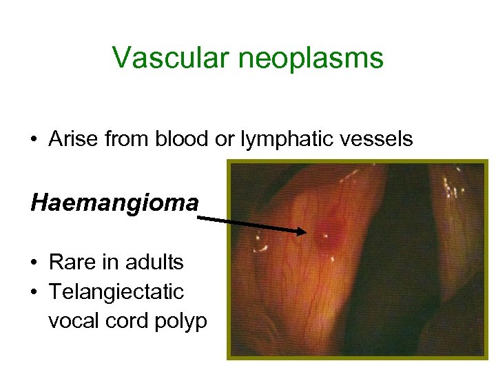 Vascular neoplasms • Arise from blood or lymphatic vessels Haemangioma • Rare in adults