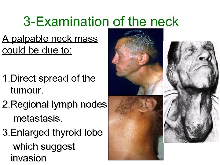 3 -Examination of the neck A palpable neck mass could be due to: 1.