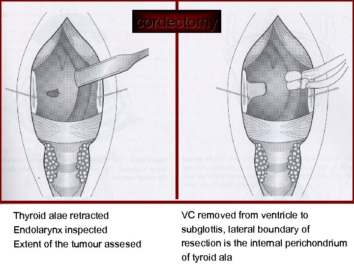 cordectomy Thyroid alae retracted Endolarynx inspected Extent of the tumour assesed VC removed from