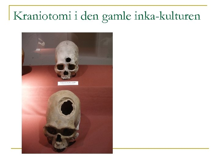 Kraniotomi i den gamle inka-kulturen